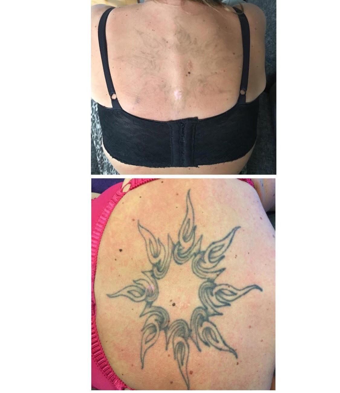 ta bort tatuering kalmar