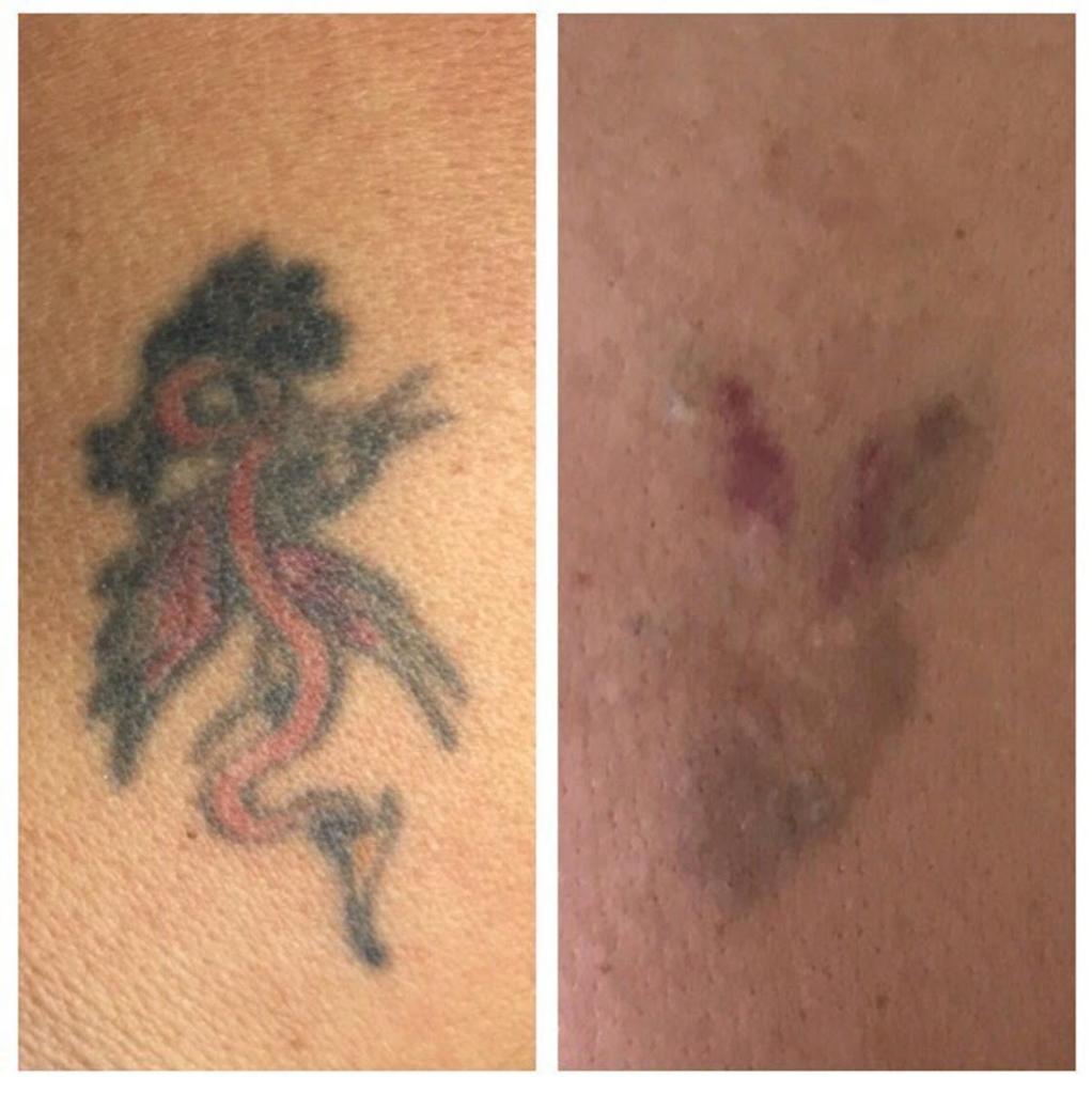 ta bort tatuering laser